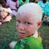 Massive Abduction and Killing Albinos in Malawi